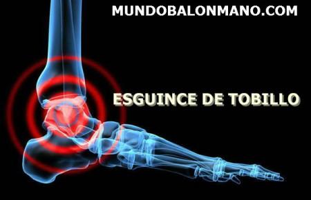 5-ESGUINCE-TORCEDURA-TOBILLO-MUNDOBALONMANO.COM