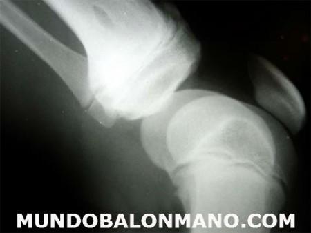 LESION-RODILLA-MUNDOBALONMANO.COM-2