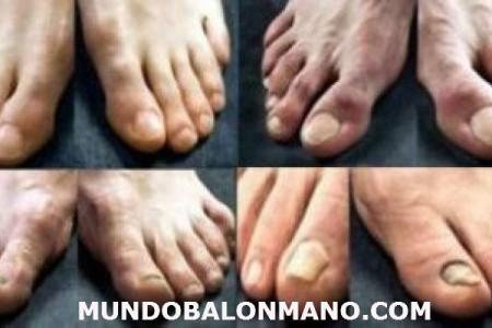 PIE3-JUGADDOR-BALONMANO-MUNDOBALONMANO.COM